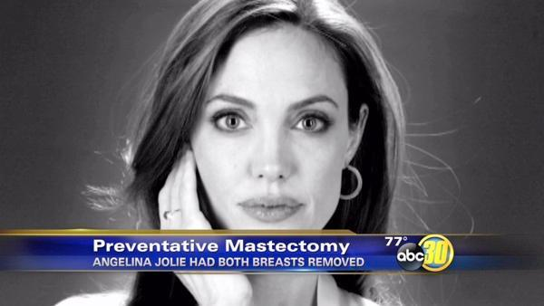 Valley women talk about preventative double mastectomy