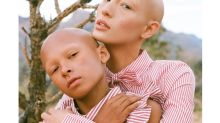 Model with alopecia poses in stunning photo shoot with her mini-me: 'I love myself with and without hair':