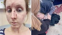 Mum attacked 'with hammer by students' while trying to protect daughter