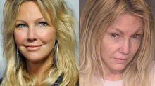 Heather Locklear: De la cima al pozo de la fama