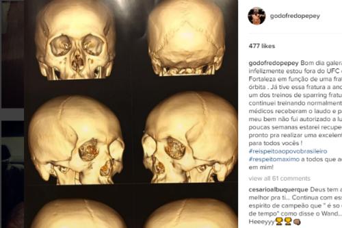 Godofredo 'Pepey' não participará mais do UFC Fortaleza - Instagram
