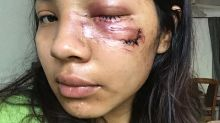Woman injured by police during Floyd unrest settles lawsuit