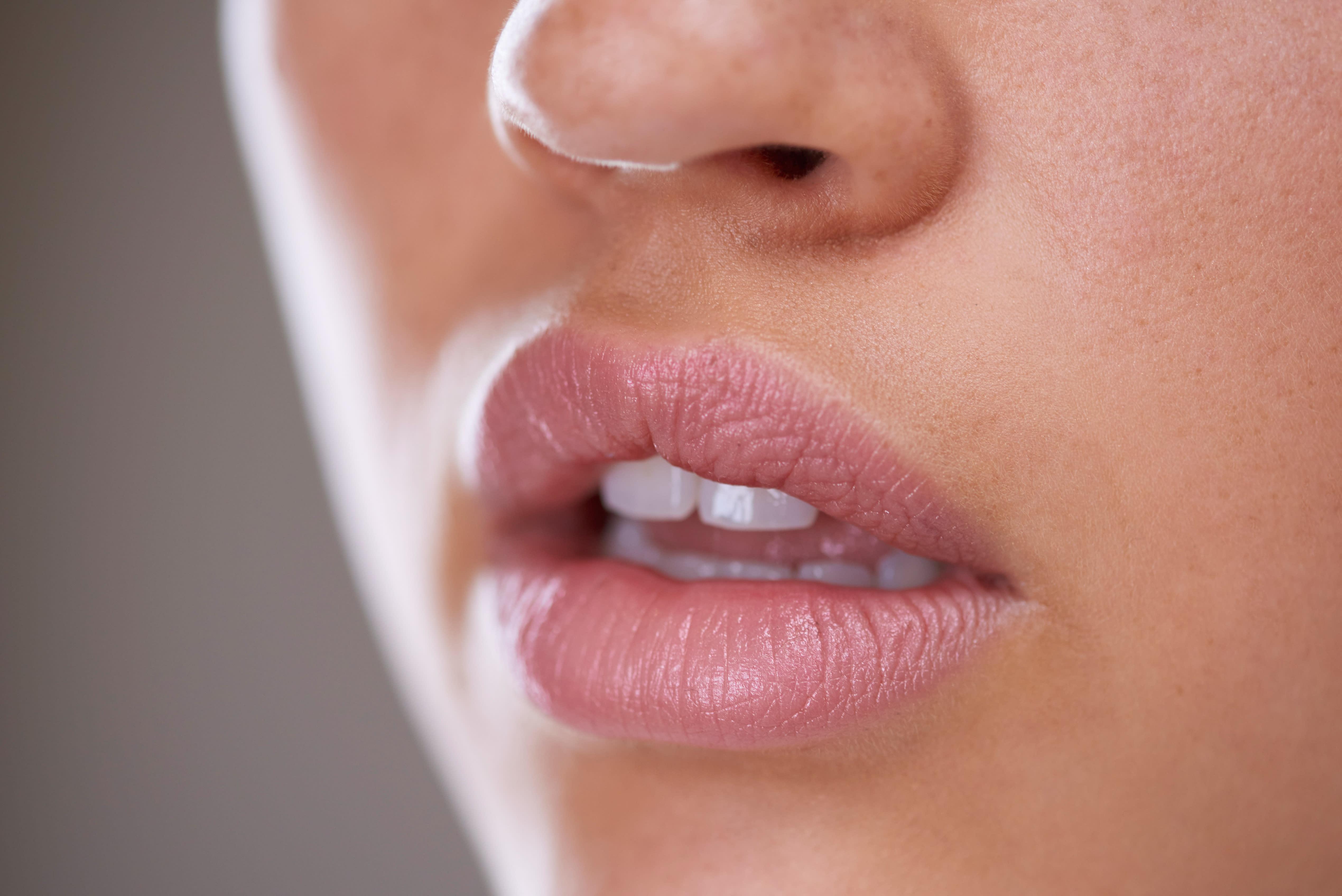 Facial lips — 10