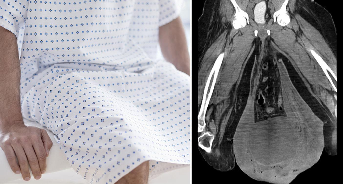 Man with fever has part of genitals removed after scrotum swells