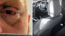 Driver could lose eye after brutal Boxing Day assault