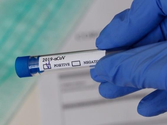 There are 209 cases of the coronavirus in Southbury as of Tuesday, according to newly released data.