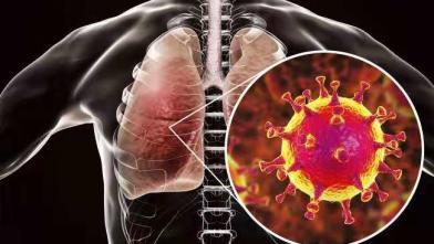 專家:武漢肺炎病毒 8成像SARS