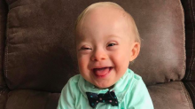 Meet the first Gerber Baby with Down syndrome