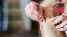El truco (de los dermatólogos) para que los pelos no se enquisten