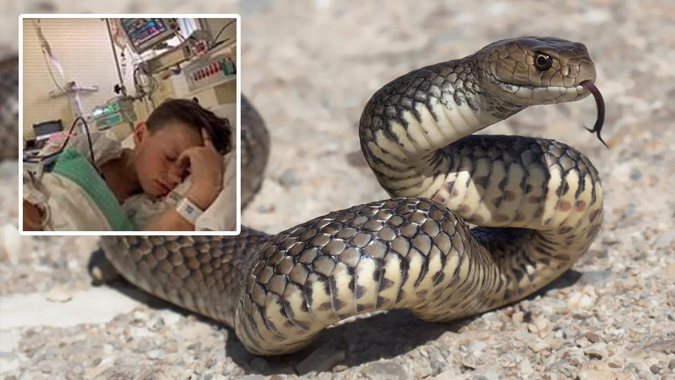 Teachers save 12-year-old boy's life after deadly snake bite on school camp