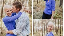 Noiva com alopecia viraliza ao fazer fotos de noivado sem peruca