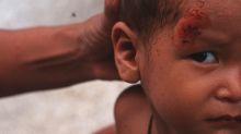 Por ellos una niña de dos años sobrevivió a una caída de 18 metros