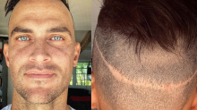Actor Cheyenne Jackson reveals he's had 5 hair transplants: 'My horrible secret'