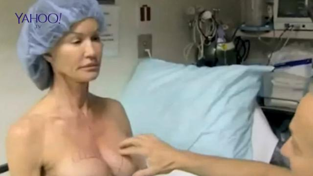 Janice Dickinson breast surgery filmed for TV