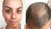 Woman Posts Photos of Herself Without a Wig, Reveals Real Reason She Lost Her Hair