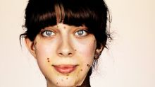 Photographer captures the beauty of diversity by showcasing rare skin condition