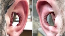 Man has entire inner ear removed in controversial body modification procedure
