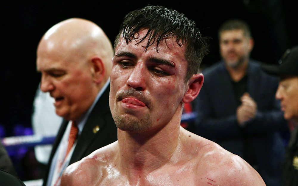 Anthony Crolla was comprehensively beaten on points by Jorge Linares - Rex Features