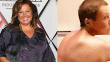 'Why didn't somebody listen to me?': Abby Lee Miller reveals surgery scar, opens up about misdiagnosis