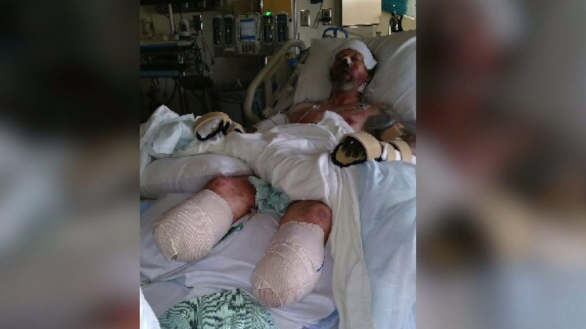 A Wisconsin man was forced to have multiple limbs amputated after he