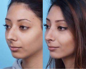 Cheap facial temecula