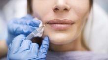 La peligrosa moda de utilizar biopolímeros para conseguir unos labios carnosos