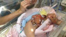 Cuando veas esto ya no temerás (tanto) que tu bebé sea prematuro