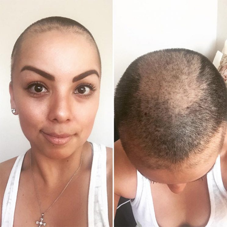 ways to style hair with trichotillomania health yahoo 3932