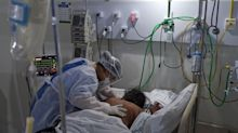 Mortes por covid-19 no Brasil chegam a 115.309; casos somam mais de 3,6 milhões