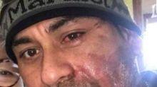 Milwaukee Mayor Blames Trump For Acid Attack On Peruvian-Born U.S. Citizen