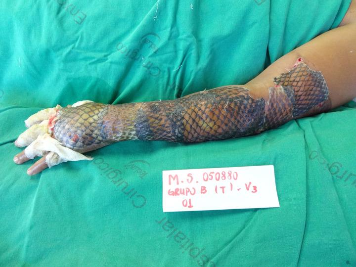 Second degree burns treated with fish skin in world first for Does fish oil help skin