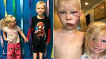 Touching twist after brave boy, 6, saves sister from dog attack