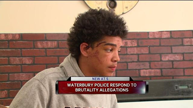 Teenager Says Police Wrongfully Tasered Him