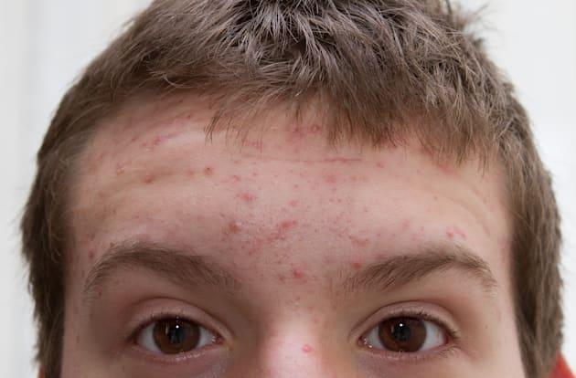 Laser-activated nanoparticles are coming to clear your acne