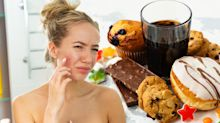 Could changing your diet cure your acne?