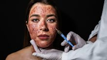 Officials are investigating after two clients were diagnosed with HIV following 'vampire facials'