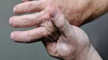 World Arthritis Day 2020: Juvenile, rheumatoid and infectious types can occur at any age, not just old