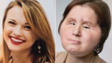 At 21, Woman Is Youngest Ever to Undergo Face Transplant After Attempting Suicide as a Teen
