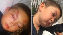 Twist in story of boy, 6, bashed 'after standing up to bullies'