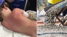 Boy, 7, suffers burns from wet cement