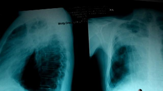 ABC News Black Lung Investigation Prompts Change