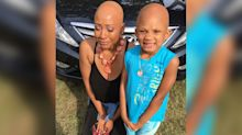 This singer with alopecia inspired a young fan to embrace her alopecia too