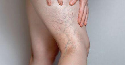 Symptoms of Deep Vein Thrombosis (Must See)