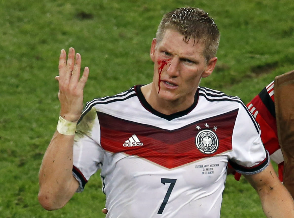 23 injury photos that prove soccer is not for the weak