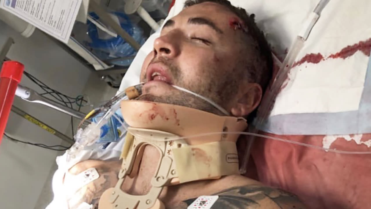 'Lesson learned': NRL star shares graphic picture after accident