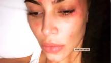Psoriasis, acné : ces stars qui sont touchées par des maladies de peau