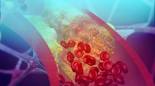 Qué hacer para evitar que suban tus niveles de colesterol con la edad