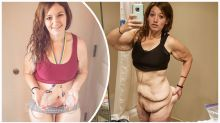 'I refuse to keep living like this': Instagram star documents skin removal surgery after losing more than 130 kg