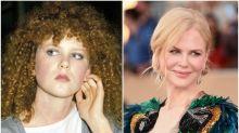 Nicole Kidman y otras 'celebrities' que no siempre presumieron de belleza