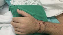 Homem tem mão reimplantada após deixá-la em saco de gelo: 'sempre gostei de séries sobre hospitais'
